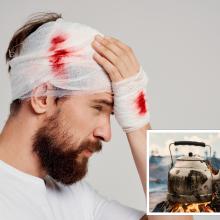 Barnis baigėsi tragiškai: vyro veidą suknežino virduliu