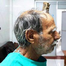Vyras liko be rago