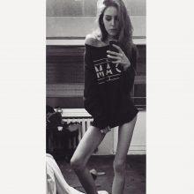 Misija – sulieknėti iki vasaros: anoreksija persirgusios merginos perspėjimai
