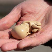 Abortą pasidariusi moteris: tai sukuria labai daug problemų