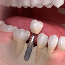 Dantys per dieną: implantacijos laimėjimas ar tušti pažadai?