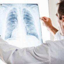 Kodėl plaučių vėžiu suserga niekuo dėti žmonės ir kaip tai susiję su namų stogais?