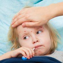 Medikai griebiasi už galvų: Kaune išaugo sergamumas vėjaraupiais ir skarlatina