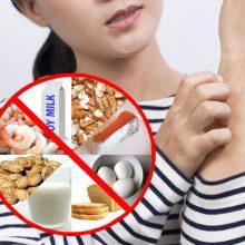 Gydytojas: nėra nei vieno maisto produkto, kuriam žmogus nebūtų alergiškas