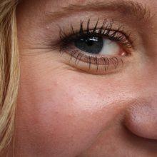 Fotosenėjimas – odos pokyčių pradžia, kurią galima sustabdyti