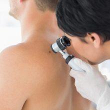 Vilties teikiantis melanomos gydymas – galimybė gyventi ilgiau?
