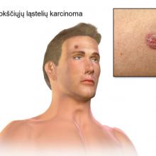Mokslininkai atskleidė natūralų būdą, kuris padės apsisaugoti nuo odos vėžio