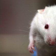 Mokslininkai tiria: Parkinsono liga prasideda žarnyne?