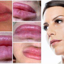 Kuo rizikuoja moterys, grožio injekcijų besikreipiančios į neprofesionalus?