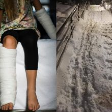 Iššūkis pėstiesiems: šie laiptai – tiesiausias kelias į traumatologijos punktą?