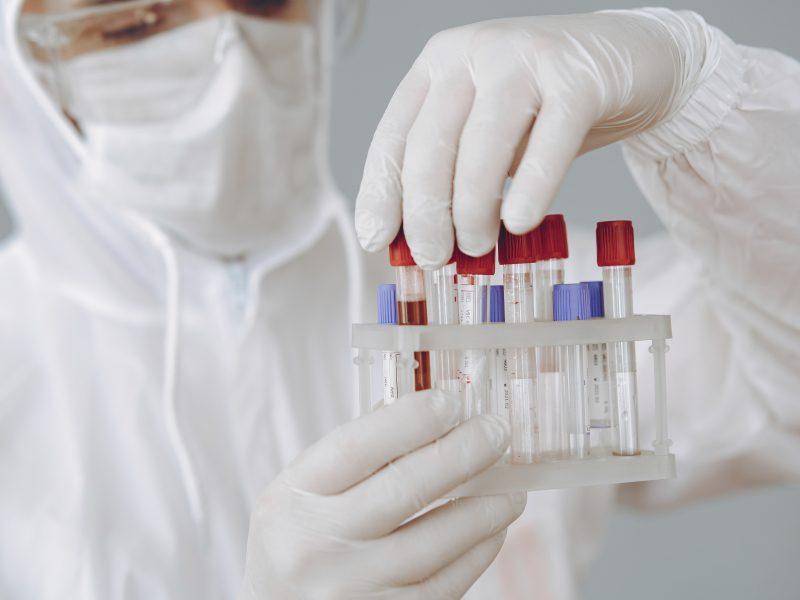 Austrijos užsienio reikalų ministrui diagnozuotas koronavirusas