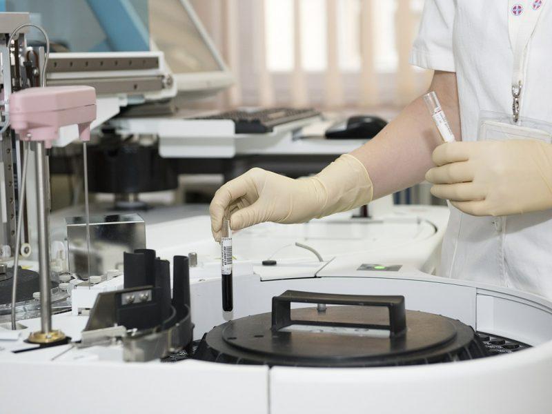 Kalėjimų departamento darbuotojai nustatytas koronavirusas