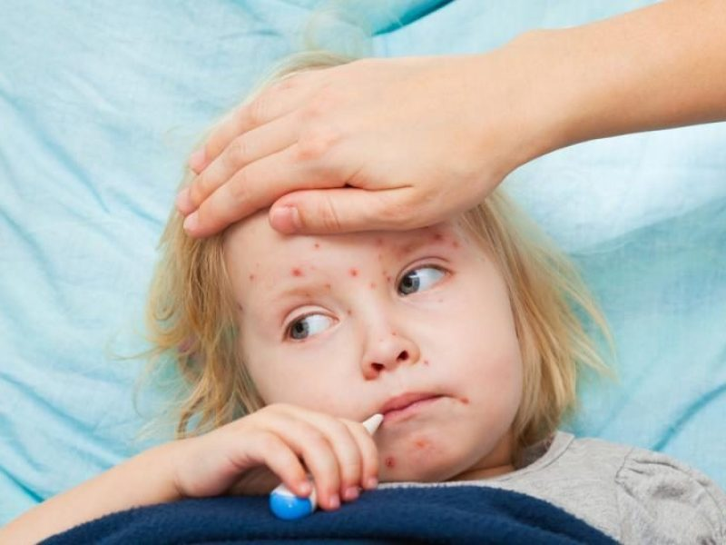 Medikai konstatuoja: šiemet išaugo sergamumas vėjaraupiais