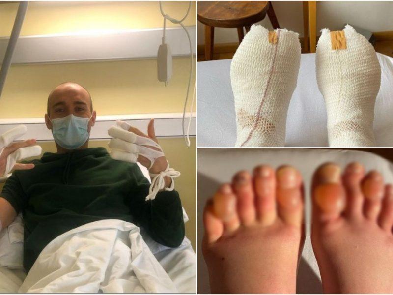Po lenktynių stingdančiame šaltyje – skaudūs padariniai: sportininkams gresia galūnių amputacija