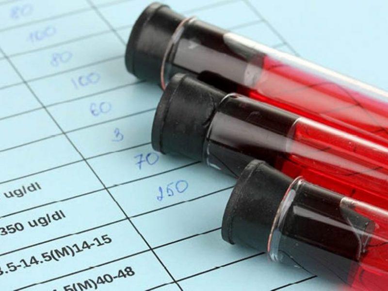 Amerikiečiai atrado naują retą ŽIV atmainą