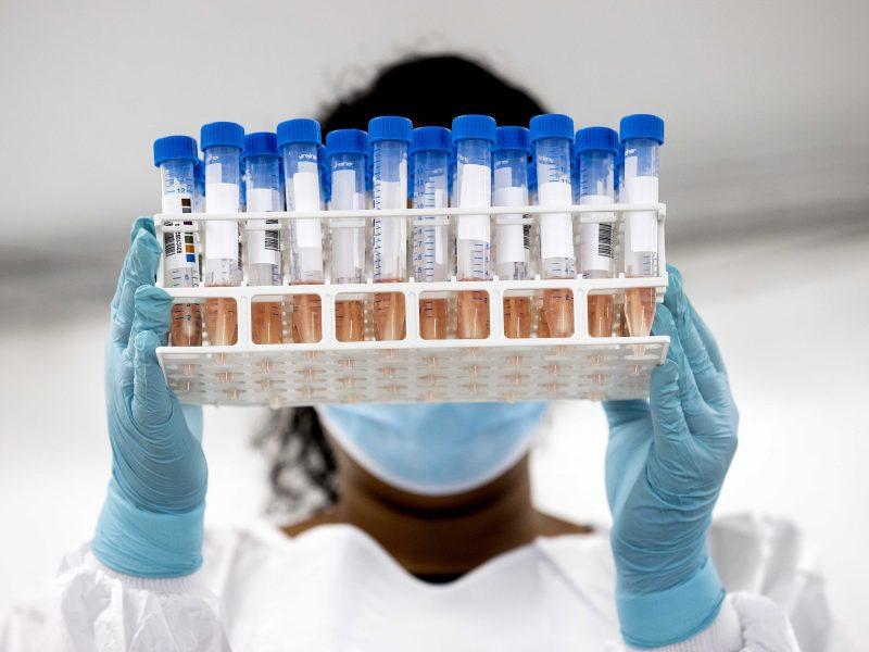 PSO: britiškoji koronaviruso atmaina jau aptikta mažiausiai 60 valstybių