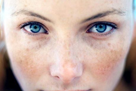veidas nudegina hipertenziją
